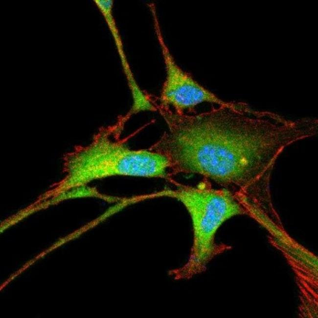 anti-Enolase 2/Neuron-specific Enolase, Polyclonal, Novus Biologicals:Antibodies:Primary