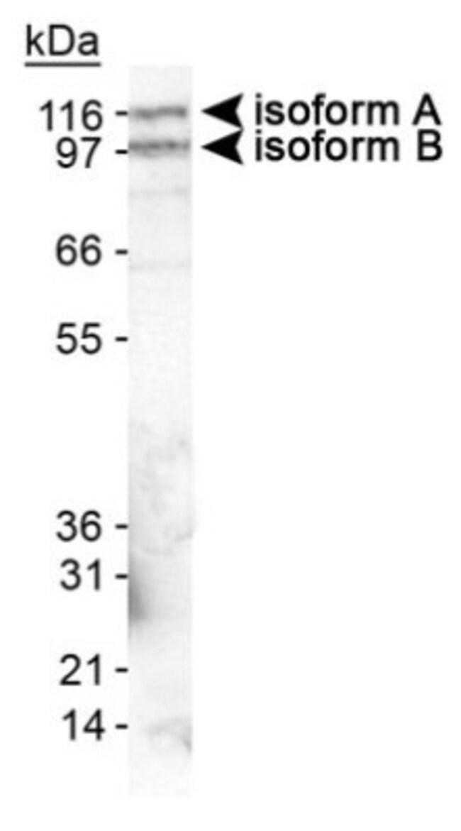 anti-EPB41L3, Polyclonal, Novus Biologicals:Antibodies:Primary Antibodies