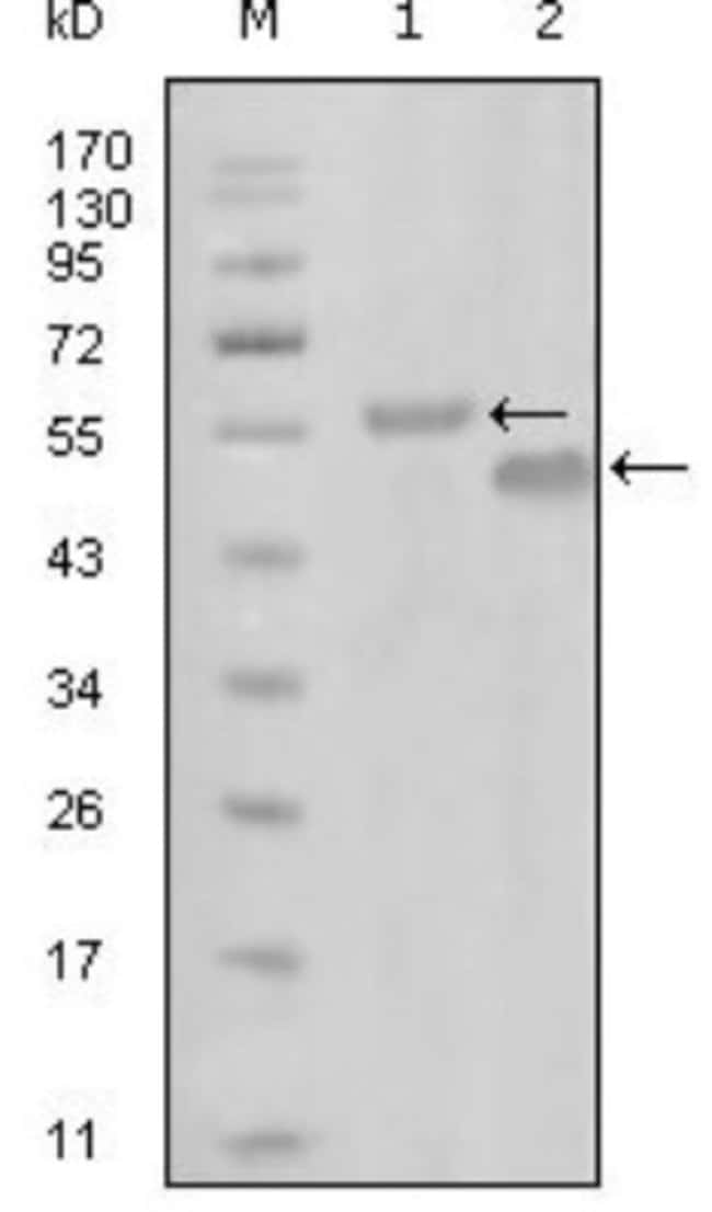 anti-EphA6, Clone: 3D5B10, Novus Biologicals 0.1mL; Unlabeled:Life Sciences