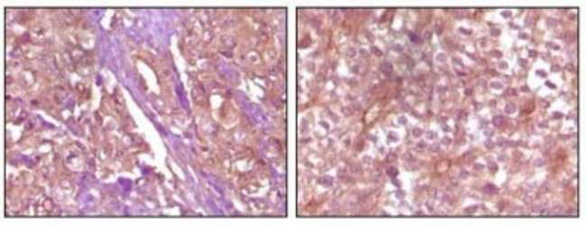 anti-EphB4, Clone: 5B8F7, Novus Biologicals 0.1mL; Unlabeled:Life Sciences