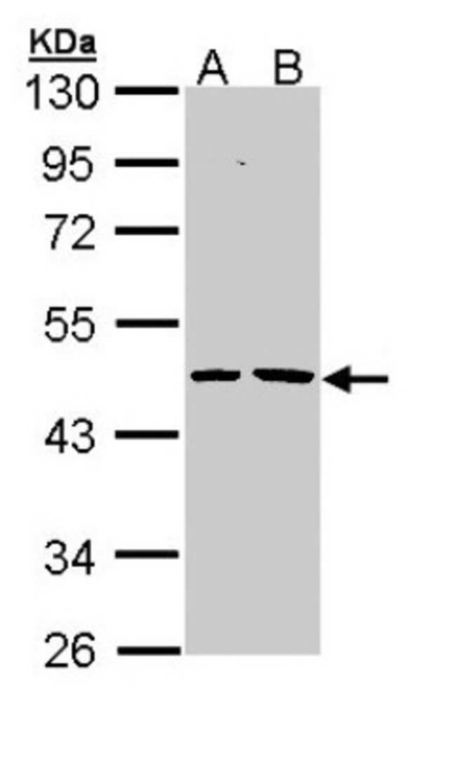 anti-EPHX1, Polyclonal, Novus Biologicals 0.1mg; Unlabeled:Antibodies