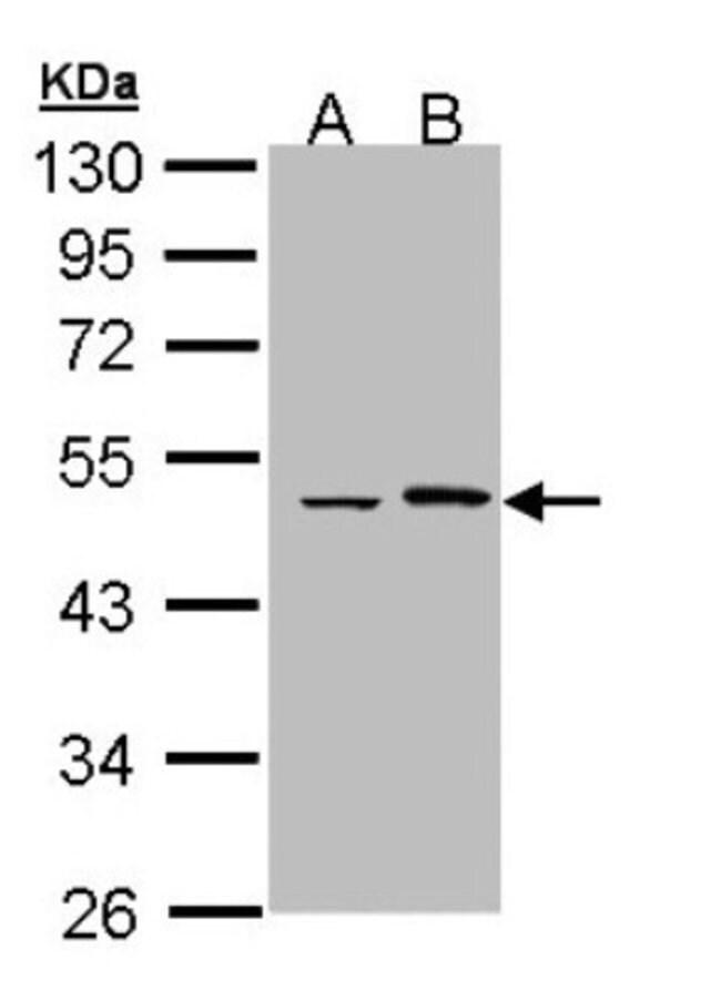 anti-EPHX1, Polyclonal, Novus Biologicals 0.1mL; Unlabeled:Antibodies