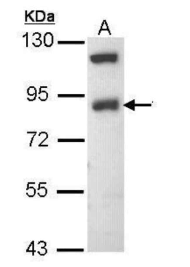 anti-epithelial Sodium Channel beta, Polyclonal, Novus Biologicals 0.1mg;