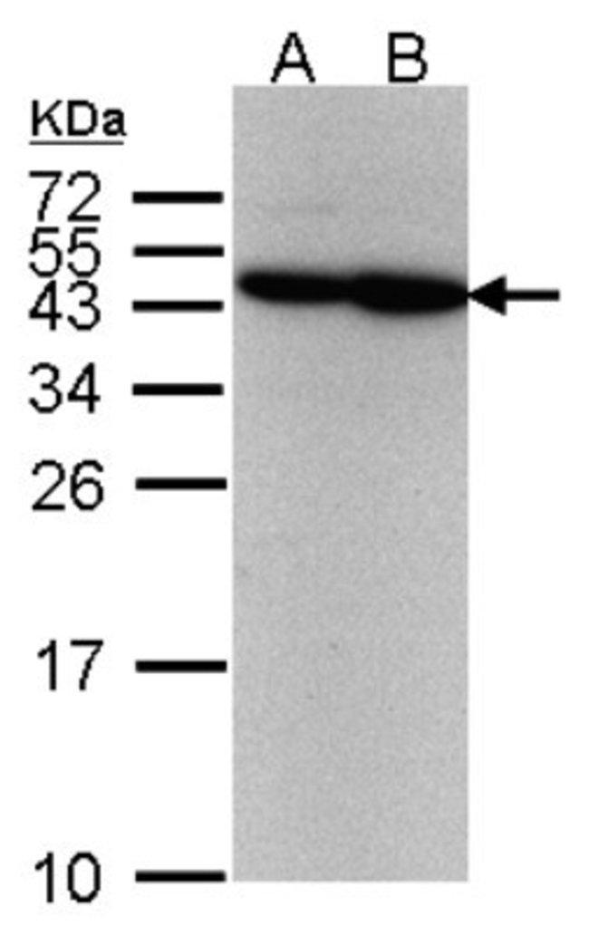 anti-ERCC8, Polyclonal, Novus Biologicals 0.1mL; Unlabeled:Life Sciences