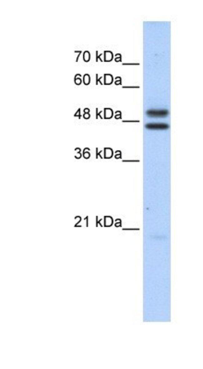 ERCC8 Rabbit anti-Human, Polyclonal, Novus Biologicals 100µL; Unlabeled:Life