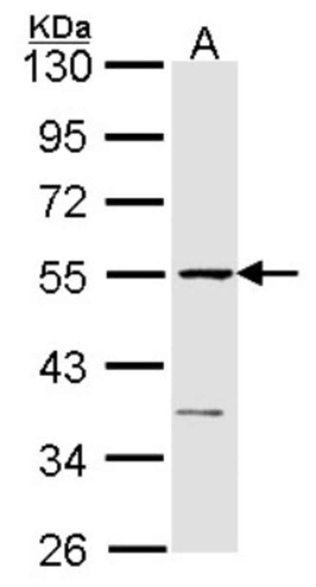 anti-eRF1, Polyclonal, Novus Biologicals 0.1mL; Unlabeled:Antibodies