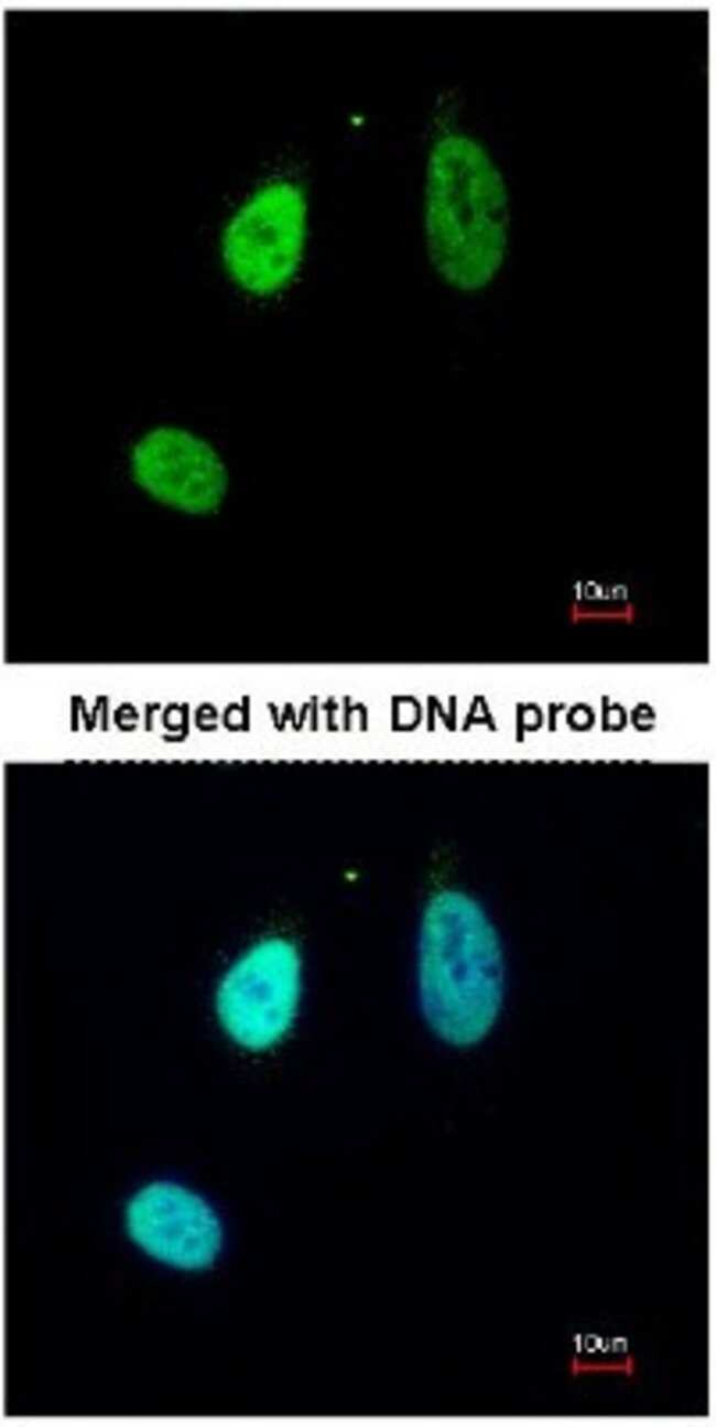 anti-ERG, Polyclonal, Novus Biologicals 0.1mL; Unlabeled:Life Sciences