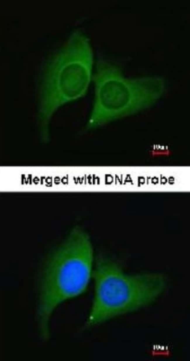 anti-ERH, Polyclonal, Novus Biologicals 0.1mL; Unlabeled:Life Sciences