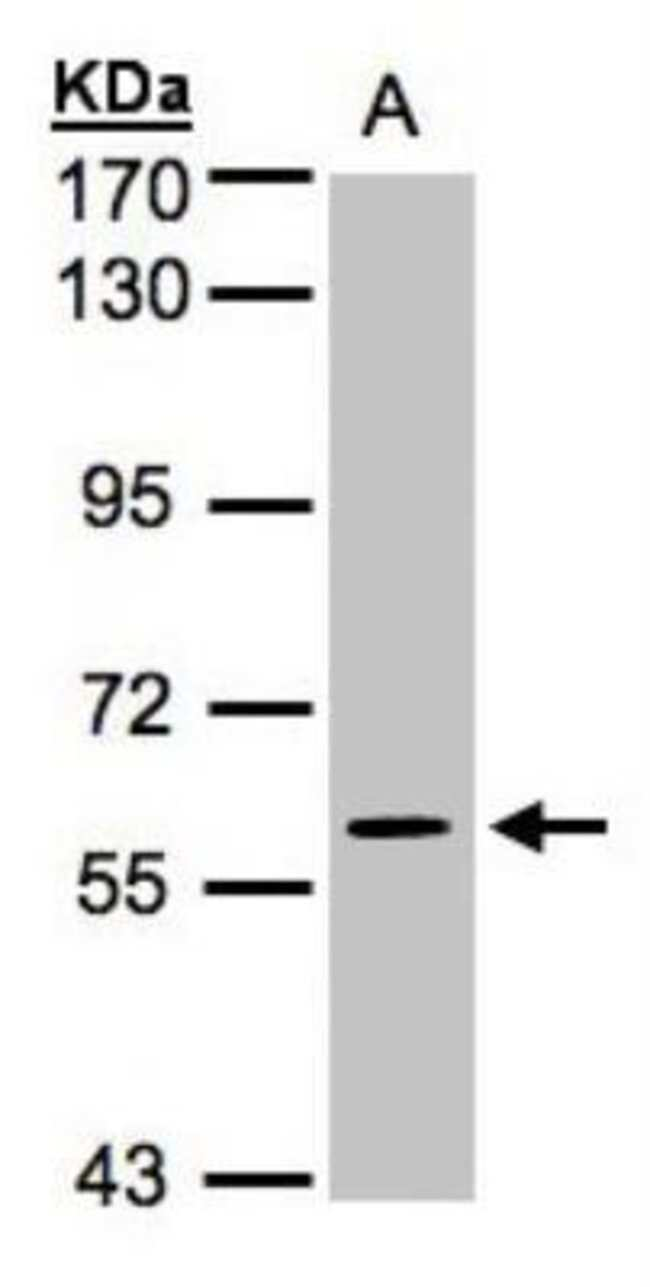 anti-ERK4/MAPK4, Polyclonal, Novus Biologicals 0.1mg; Unlabeled:Antibodies