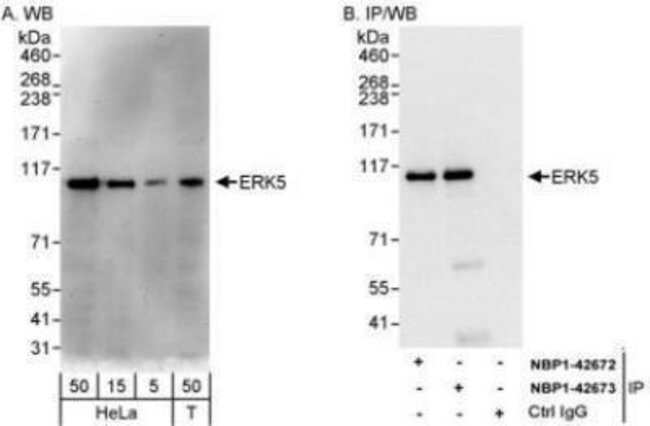 anti-ERK5/BMK1, Polyclonal, Novus Biologicals 0.1mL; Unlabeled:Life Sciences