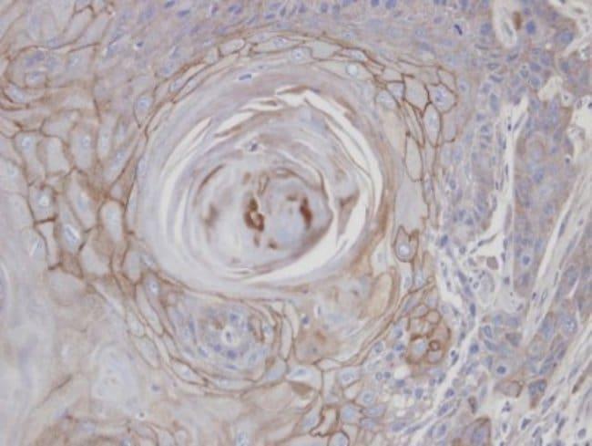 anti-ERManI, Polyclonal, Novus Biologicals 0.1mL; Unlabeled:Antibodies