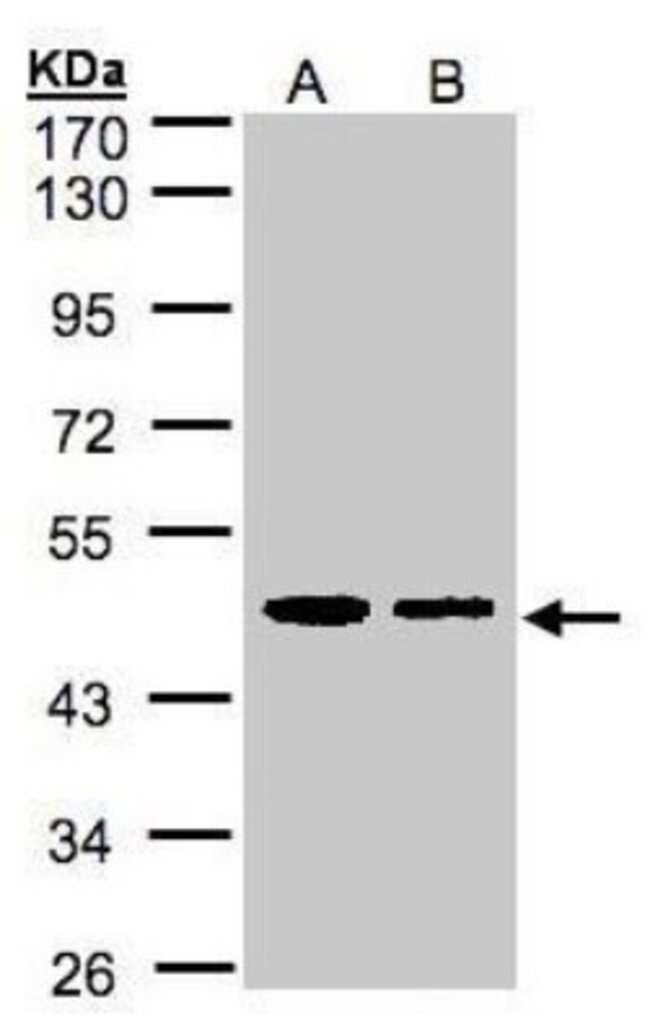 anti-ERP44, Polyclonal, Novus Biologicals 0.1mg; Unlabeled:Life Sciences