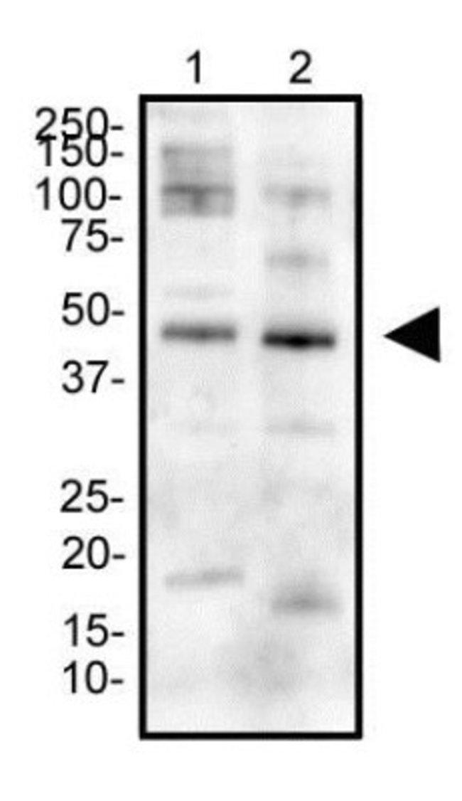 anti-Erythropoietin R, Polyclonal, Novus Biologicals:Antibodies:Primary
