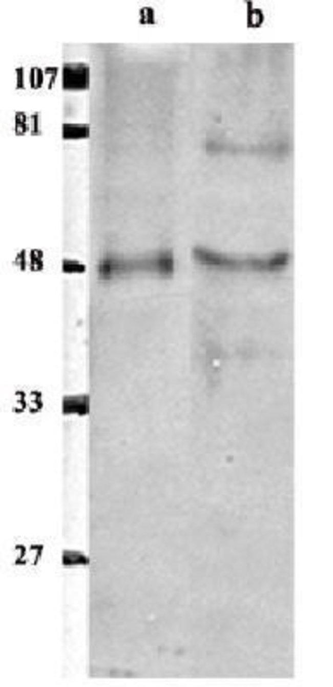 anti-ETS1 associated protein II, Polyclonal, Novus Biologicals:Antibodies:Primary