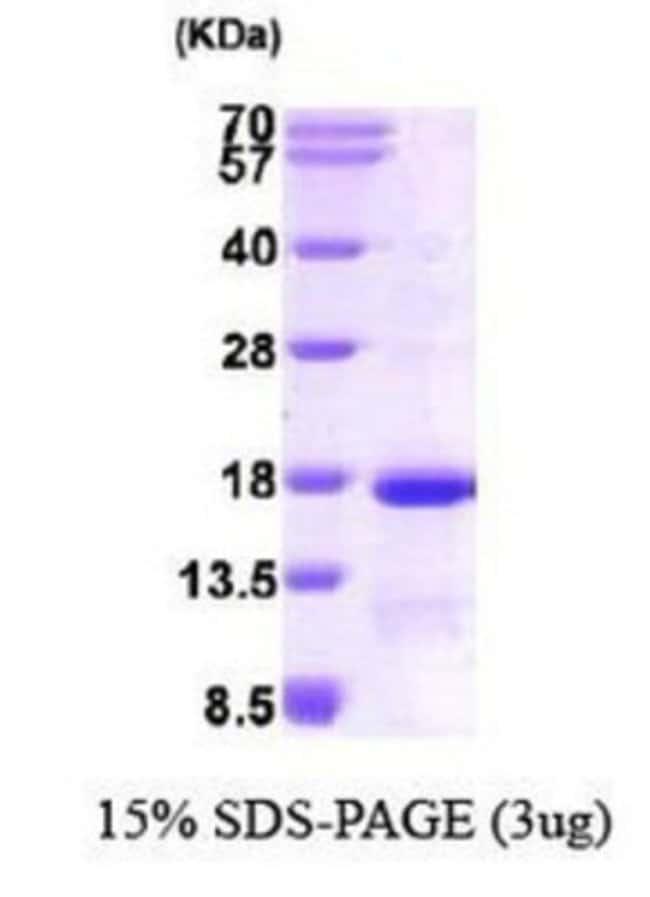 Novus Biologicals Human Eukaryotic translation initiation factor 1 Protein