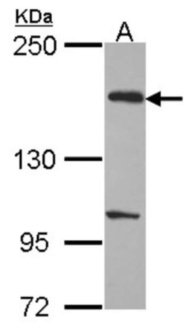 anti-EVC2, Polyclonal, Novus Biologicals 0.1mg; Unlabeled:Life Sciences