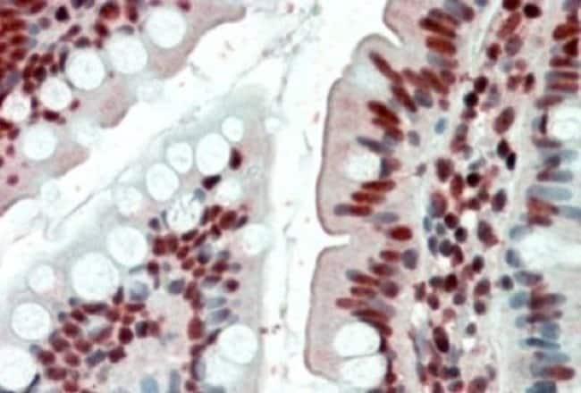 anti-EWSR1, Polyclonal, Novus Biologicals 0.1mg; Unlabeled:Antibodies