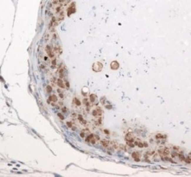 anti-Exosome Component 9, Polyclonal, Novus Biologicals:Antibodies:Primary