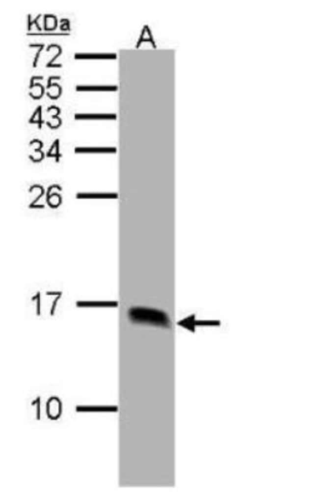 anti-FABP1/L-FABP, Polyclonal, Novus Biologicals 0.1mg; Unlabeled:Antibodies