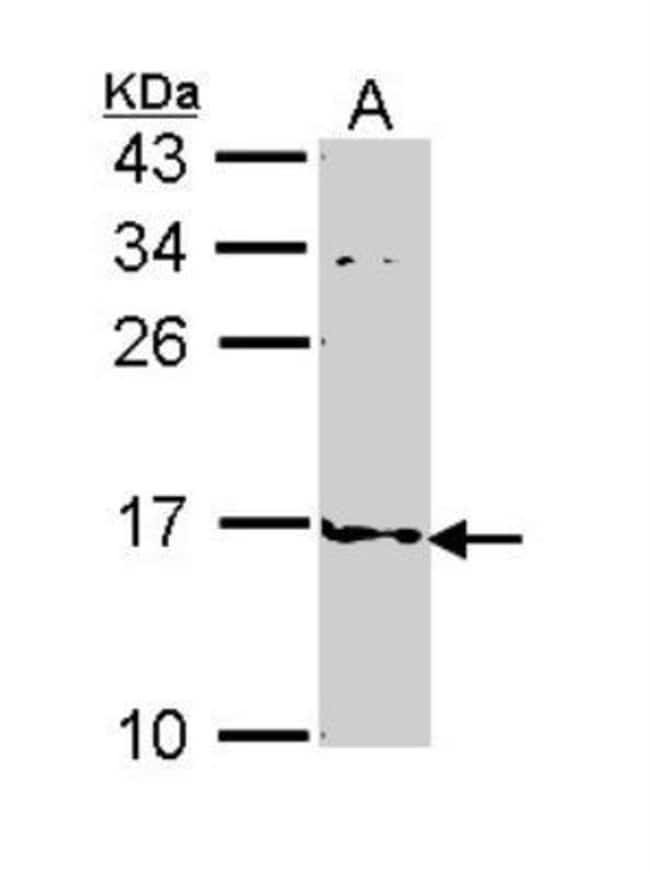 anti-FABP4/A-FABP, Polyclonal, Novus Biologicals 0.1mg; Unlabeled:Life