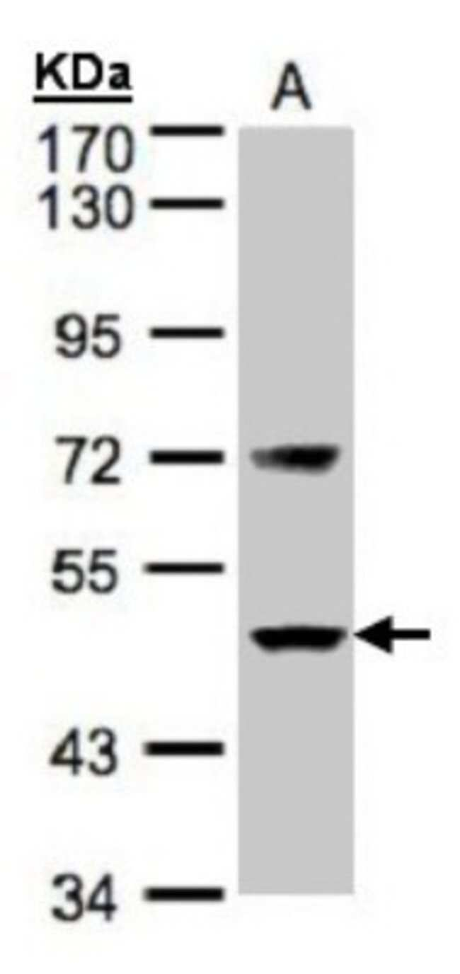 anti-Coagulation Factor VII, Polyclonal, Novus Biologicals 0.1mL; Unlabeled:Life