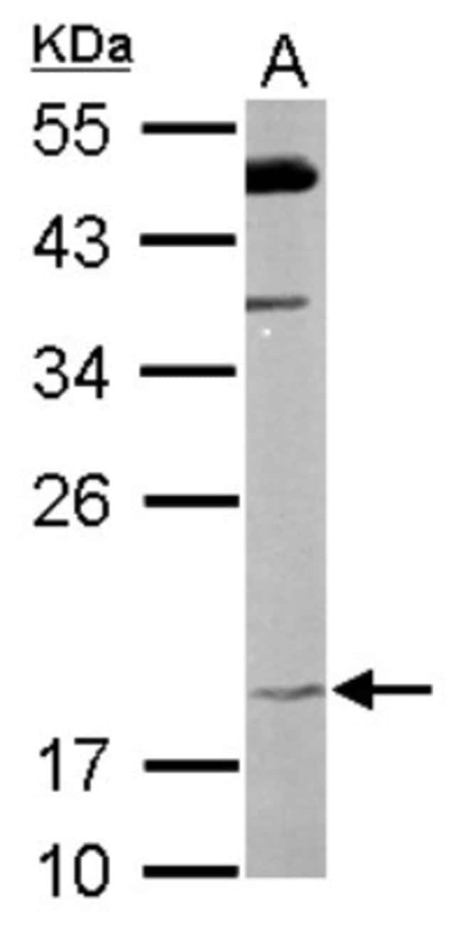 anti-FAIM1, Polyclonal, Novus Biologicals 0.1mg; Unlabeled:Antibodies