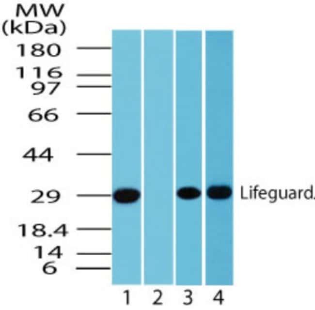 anti-FAIM2, Polyclonal, Novus Biologicals:Antibodies:Primary Antibodies