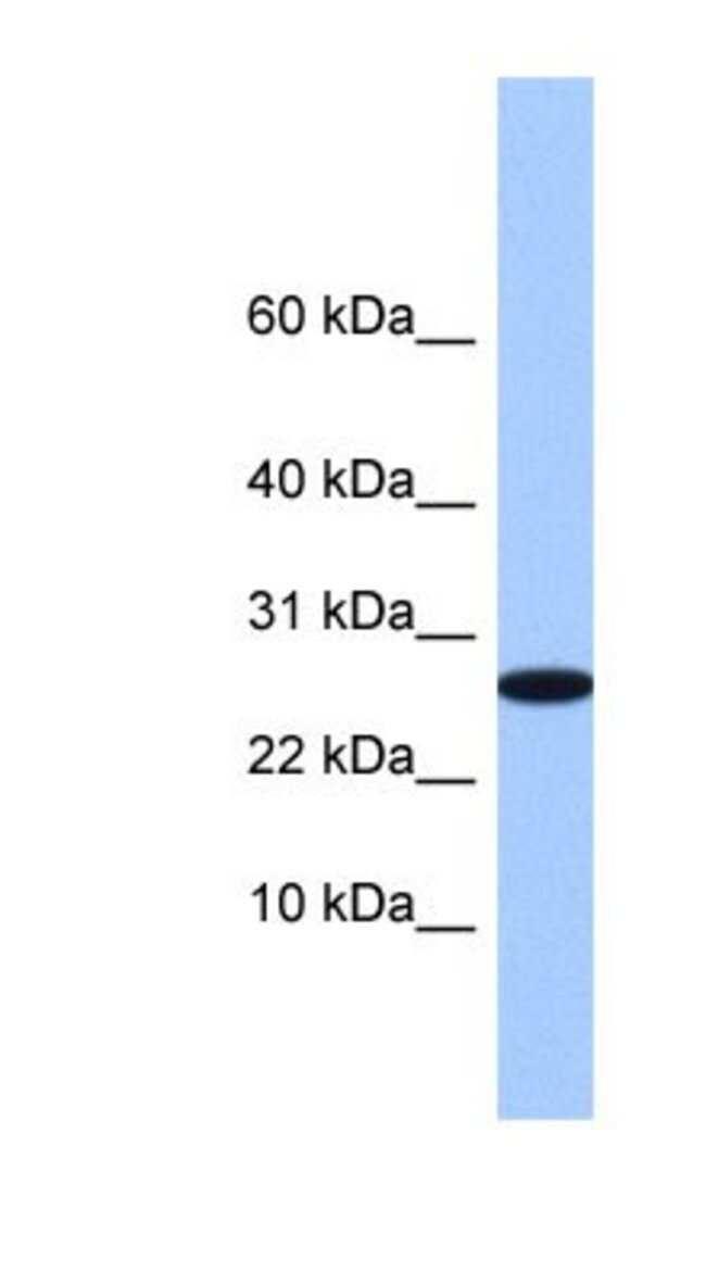 FAM101A Rabbit anti-Human, Polyclonal, Novus Biologicals 20µL; Unlabeled
