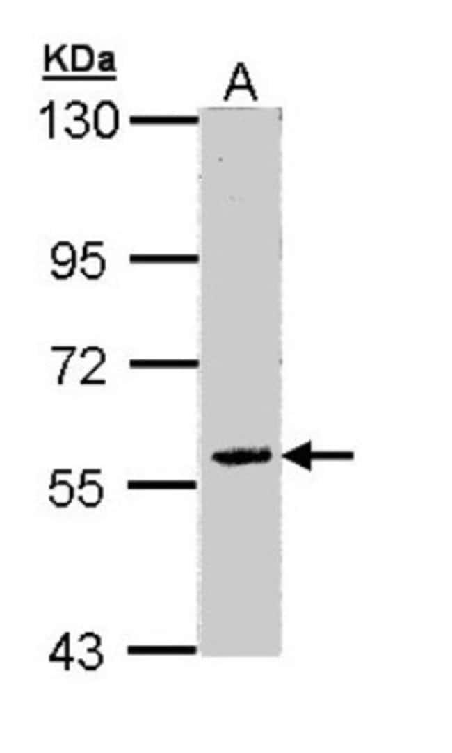 anti-FAM126A, Polyclonal, Novus Biologicals 0.1mg; Unlabeled:Antibodies