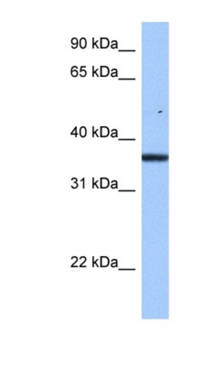 FAM153B Rabbit anti-Human, Polyclonal, Novus Biologicals 100µL; Unlabeled:Life