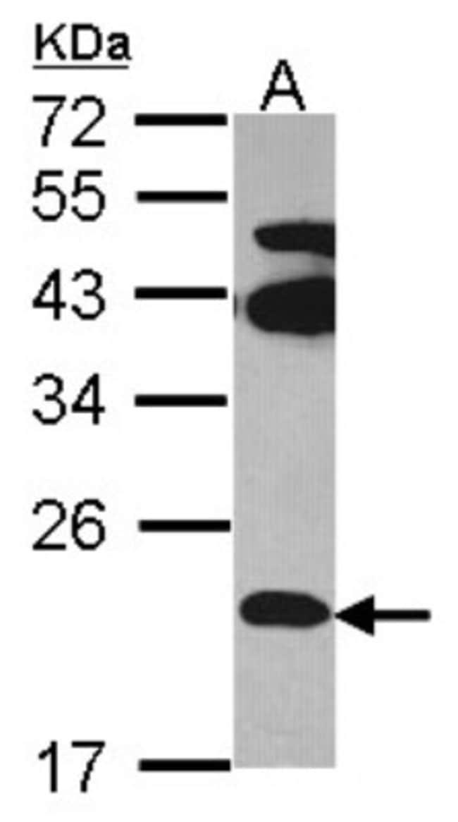 anti-FAM18B, Polyclonal, Novus Biologicals 0.1mL; Unlabeled:Life Sciences