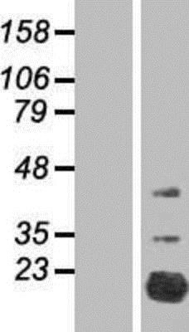 Novus Biologicals FAM210A Overexpression Lysate (Native) 0.1mg:Life Sciences