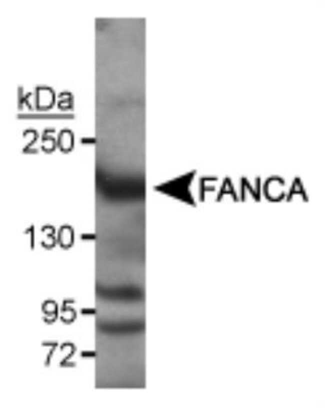 anti-FACA/FANCA, Polyclonal, Novus Biologicals:Antibodies:Primary Antibodies