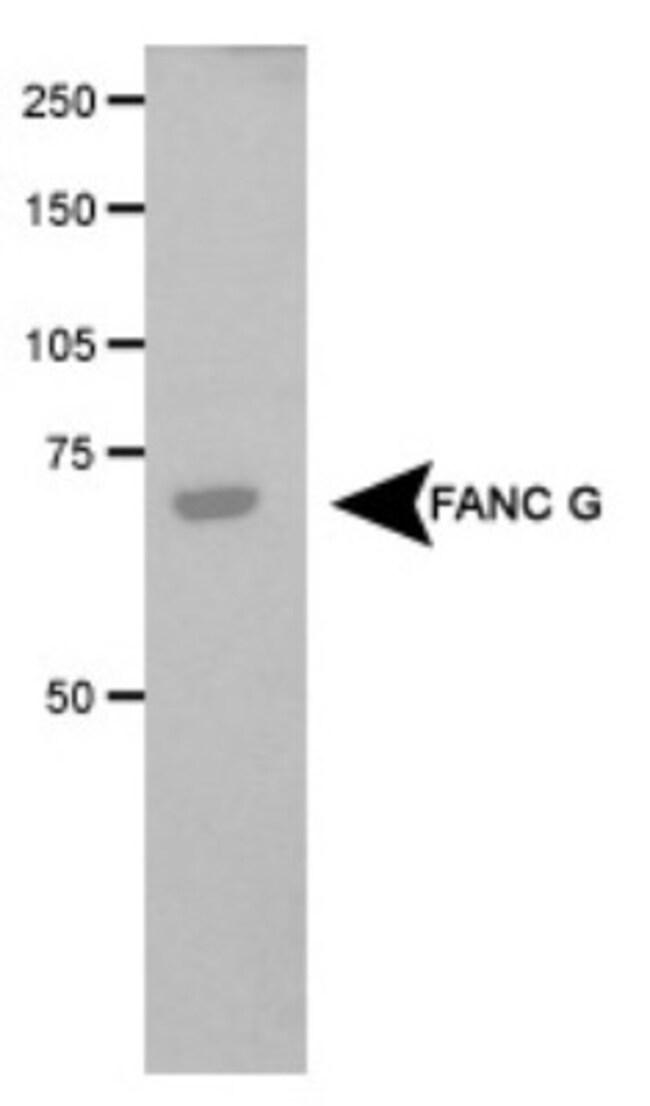anti-FANCG, Polyclonal, Novus Biologicals:Antibodies:Primary Antibodies