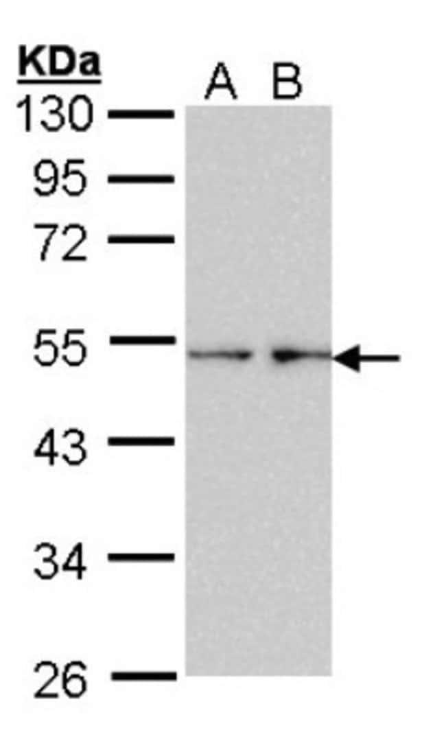 anti-Fascin, Polyclonal, Novus Biologicals 0.1mL; Unlabeled:Life Sciences