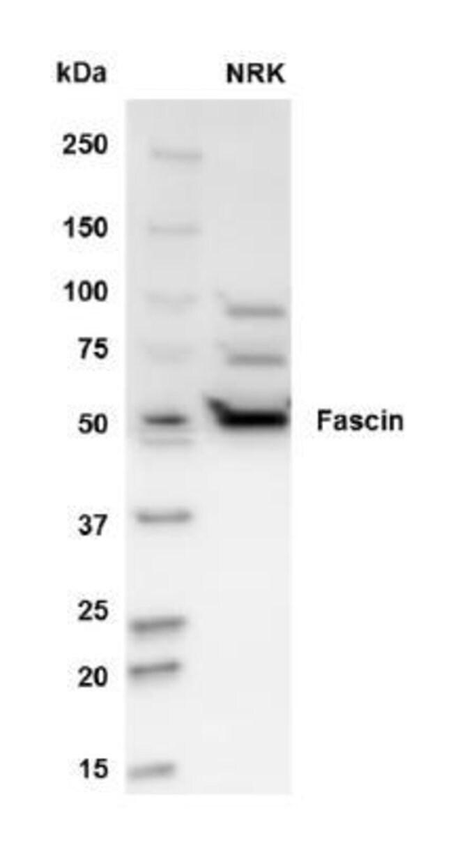 Fascin 2 Rabbit, Polyclonal, Novus Biologicals 20µL; Unlabeled