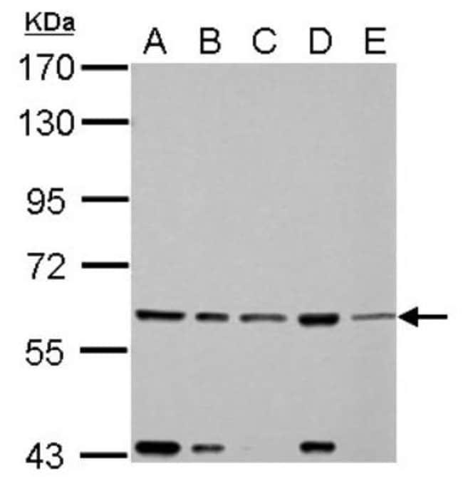 anti-FASTK, Polyclonal, Novus Biologicals 0.1mL; Unlabeled:Life Sciences