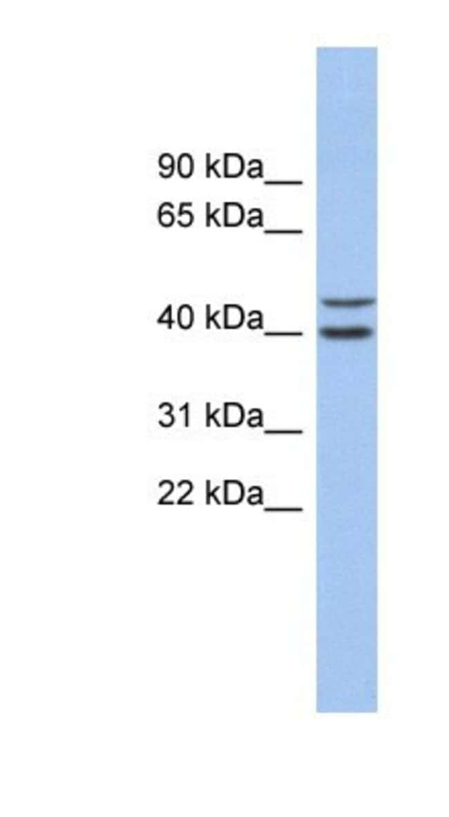 Fbl14 Rabbit anti-Human, Polyclonal, Novus Biologicals 20µL; Unlabeled
