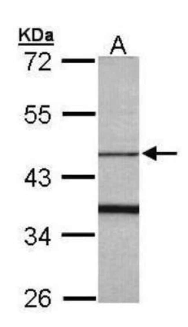 anti-F-box protein 15/FBXO15, Polyclonal, Novus Biologicals 0.1mg; Unlabeled:Life