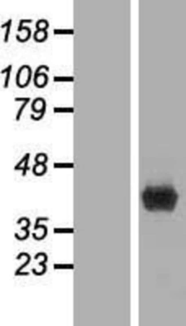 Novus Biologicals FBPase 1 Overexpression Lysate (Native) 0.1mg:Life Sciences