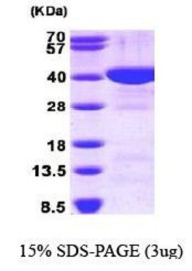 Novus BiologicalsHuman FBPase 1 Protein 0.1mg; Unlabeled:Biochemical Reagents