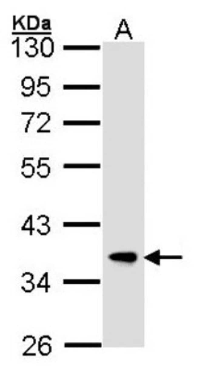 anti-FbxL12, Polyclonal, Novus Biologicals 0.1mg; Unlabeled:Life Sciences