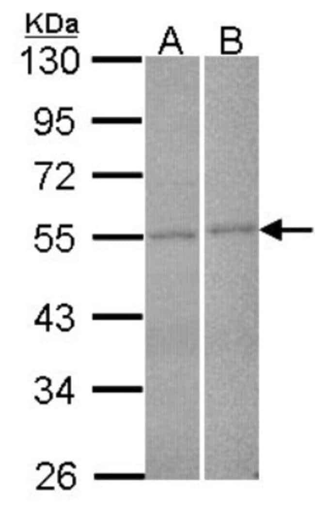 anti-FBXL2, Polyclonal, Novus Biologicals 0.1mL; Unlabeled:Life Sciences