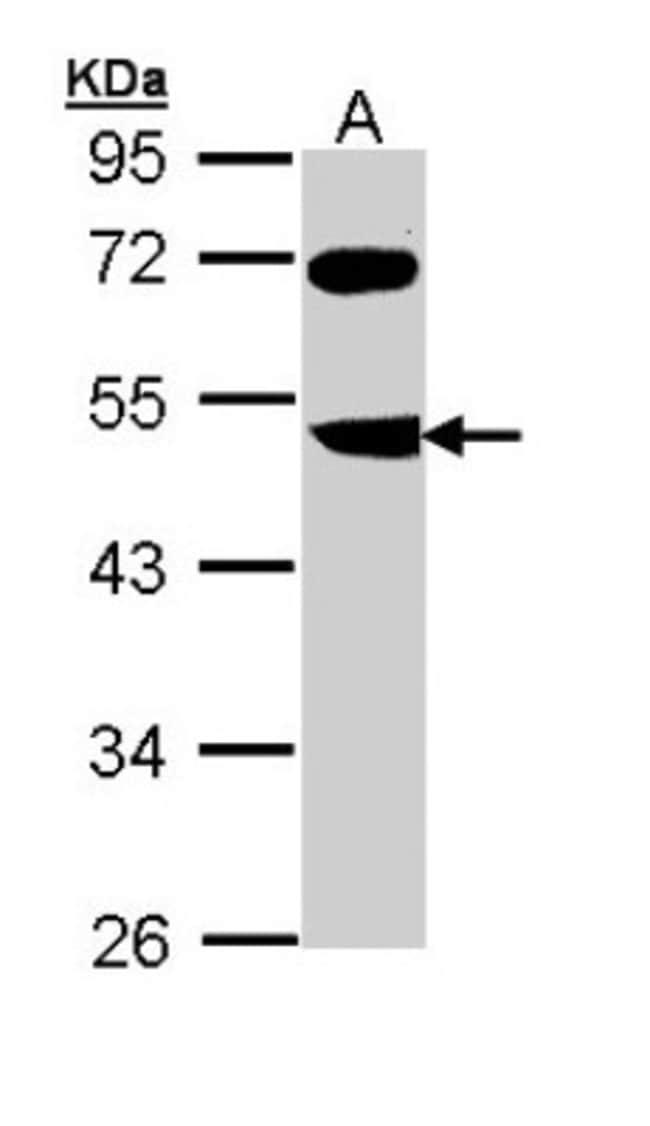 anti-FBXL3, Polyclonal, Novus Biologicals 0.1mL; Unlabeled:Antibodies