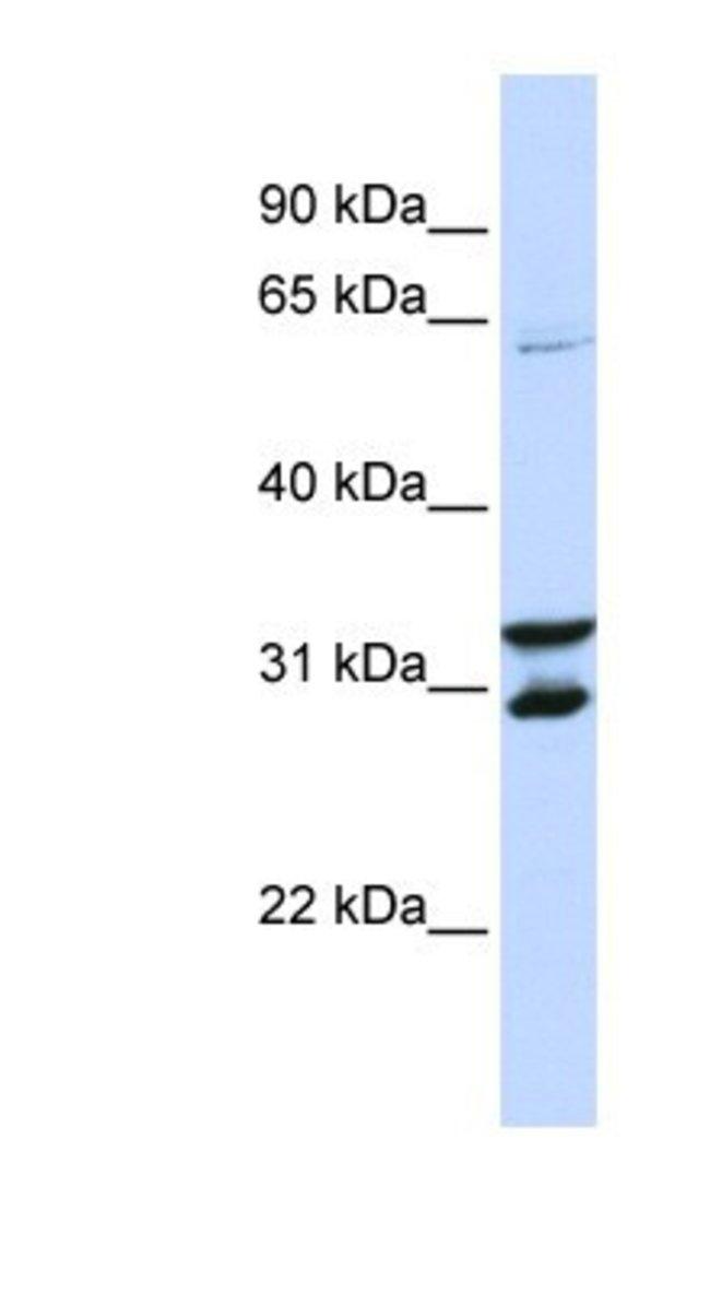 FBXO24 Rabbit anti-Human, Polyclonal, Novus Biologicals 100µL; Unlabeled:Life
