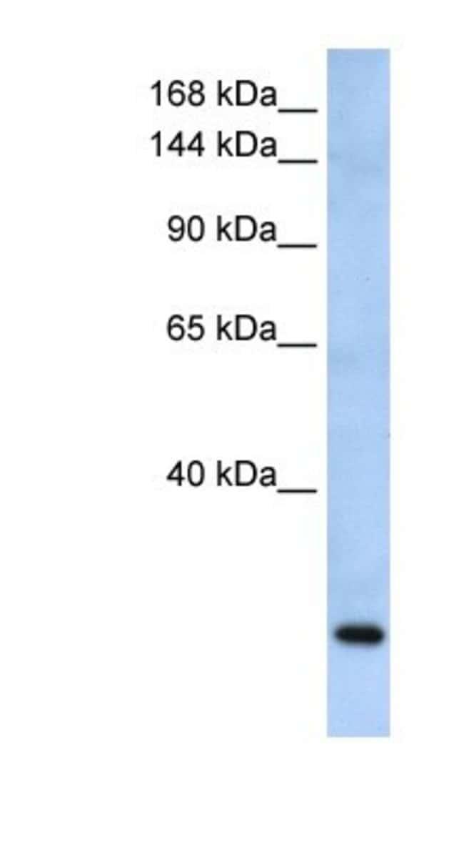 FBXW10 Rabbit anti-Human, Polyclonal, Novus Biologicals 20µL; Unlabeled