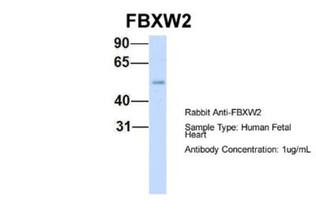 FBXW2 Rabbit anti-Human, Polyclonal, Novus Biologicals 20µL; Unlabeled