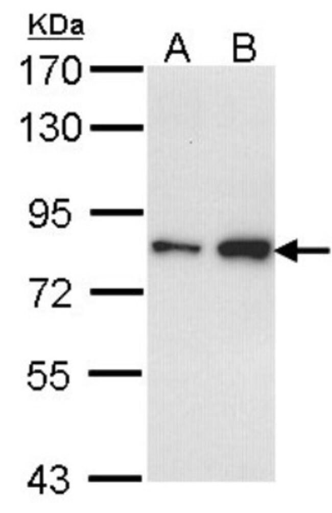 anti-FCP1, Polyclonal, Novus Biologicals 0.1mg; Unlabeled:Life Sciences