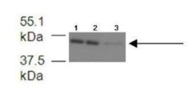 FECH Rabbit, Polyclonal, Novus Biologicals 100µL; Unlabeled:Life Sciences