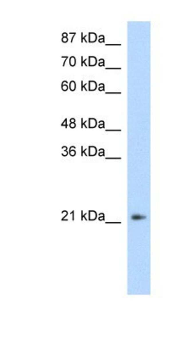 FERD3L Rabbit anti-Human, Polyclonal, Novus Biologicals 20µL; Unlabeled